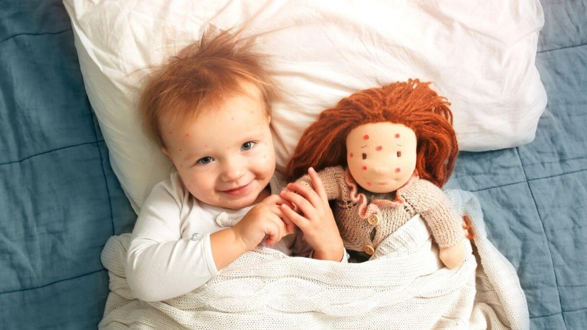 Chickenpox in Infants
