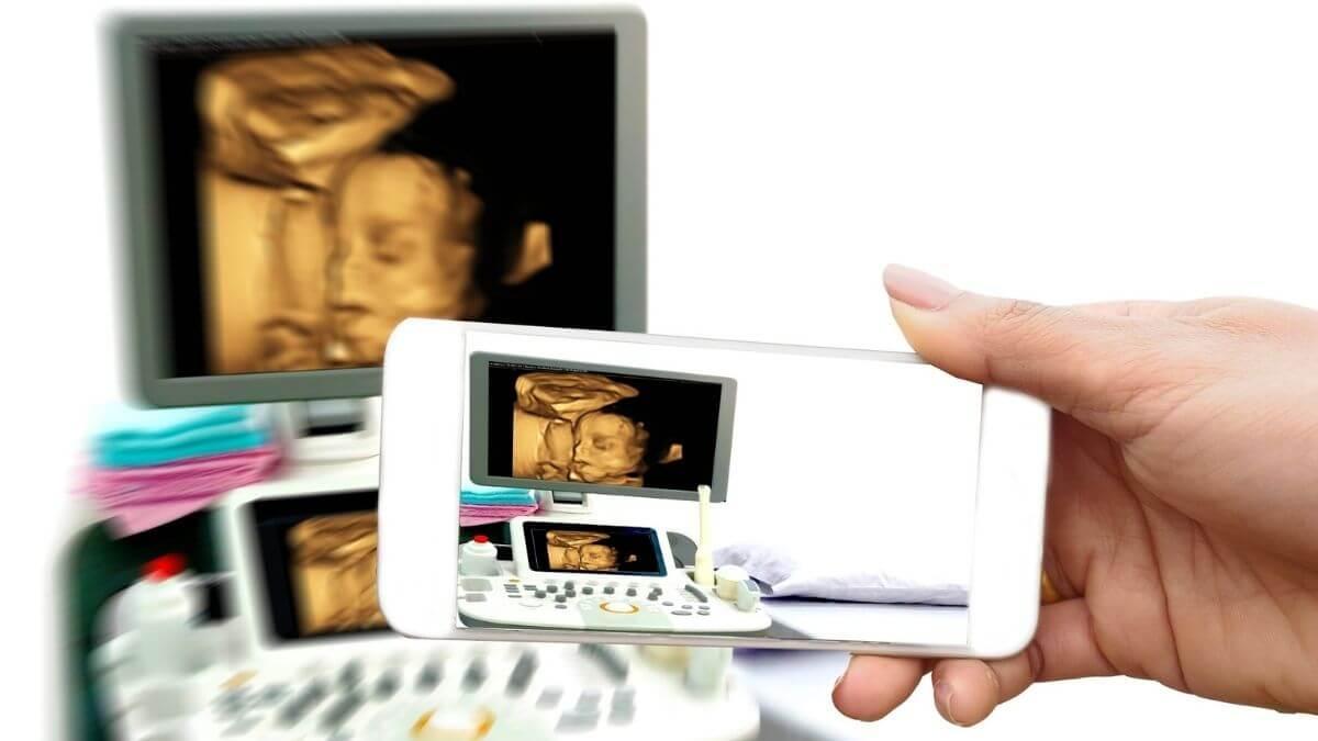 4D ultrasound