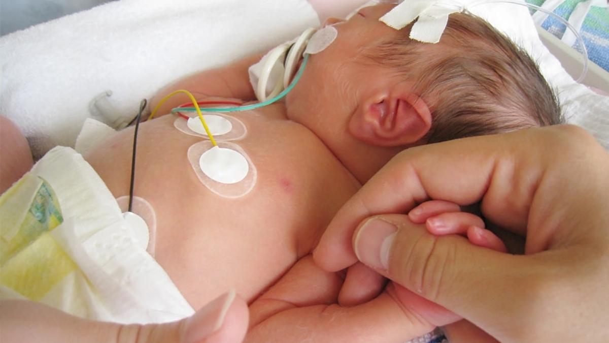 Baby Born at 31 Weeks