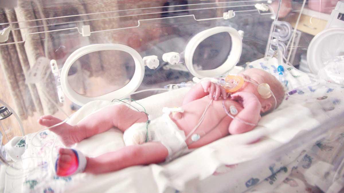 Preemie baby born at 34 weeks